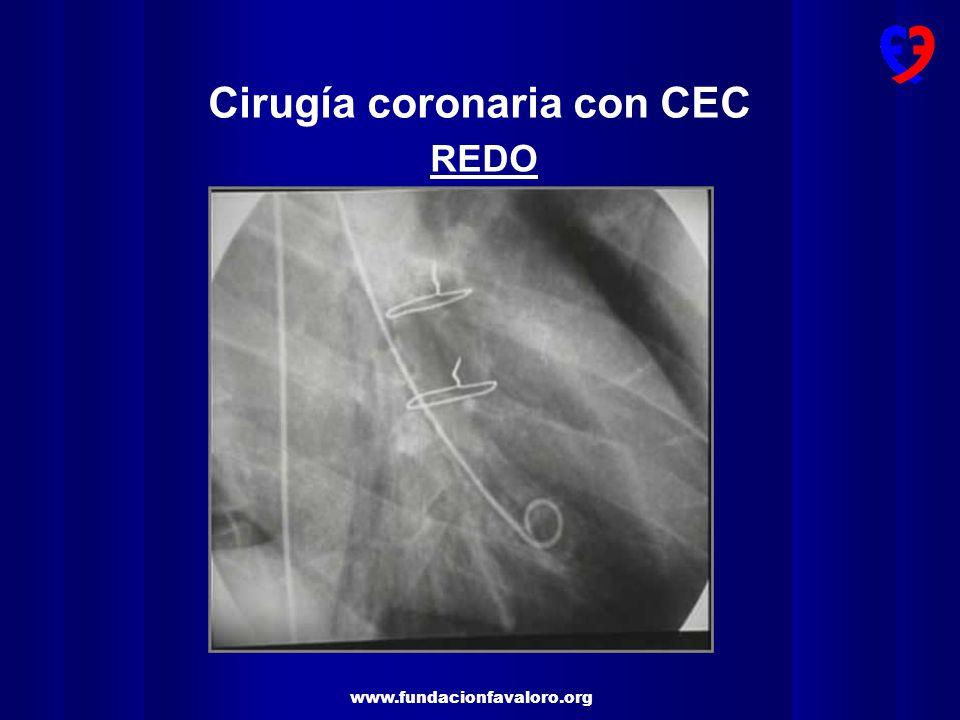www.fundacionfavaloro.org 50 % stenosis in Major System Jones & Weintraub JTCVS (1996) Grafts2.6 + 0.93.5 + 0.9 <0.001 Hospital Death 1.5 %0.7 %0.06 Angina during F-U (11 years )50 %42 %0.0007 Incomplete(n=803)Complete(n=2057)