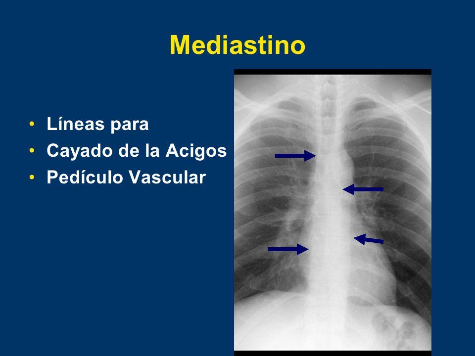 Mediastino Líneas para Cayado de la Acigos Pedículo Vascular
