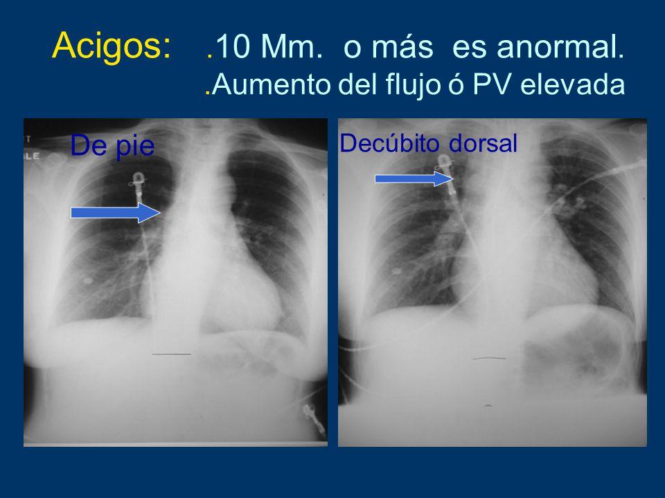 Acigos:. 10 Mm. o más es anormal..Aumento del flujo ó PV elevada De pie Decúbito dorsal