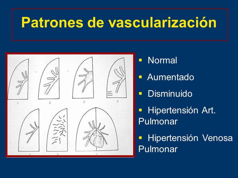 Patrones de vascularización Normal Aumentado Disminuido Hipertensión Art.