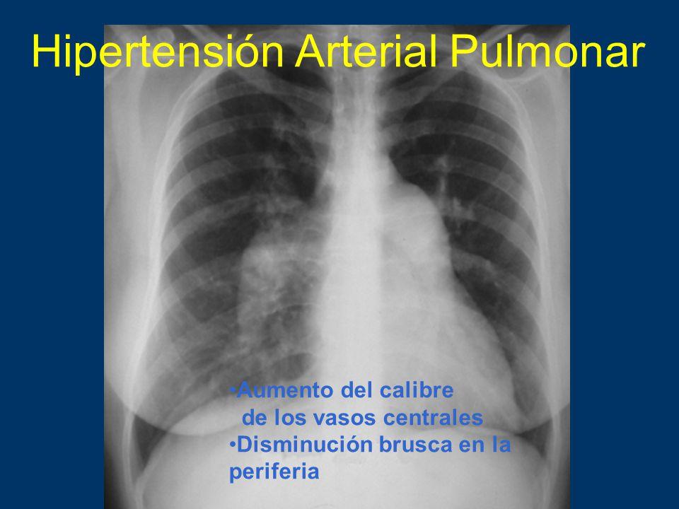 Hipertensión Arterial Pulmonar Aumento del calibre de los vasos centrales Disminución brusca en la periferia