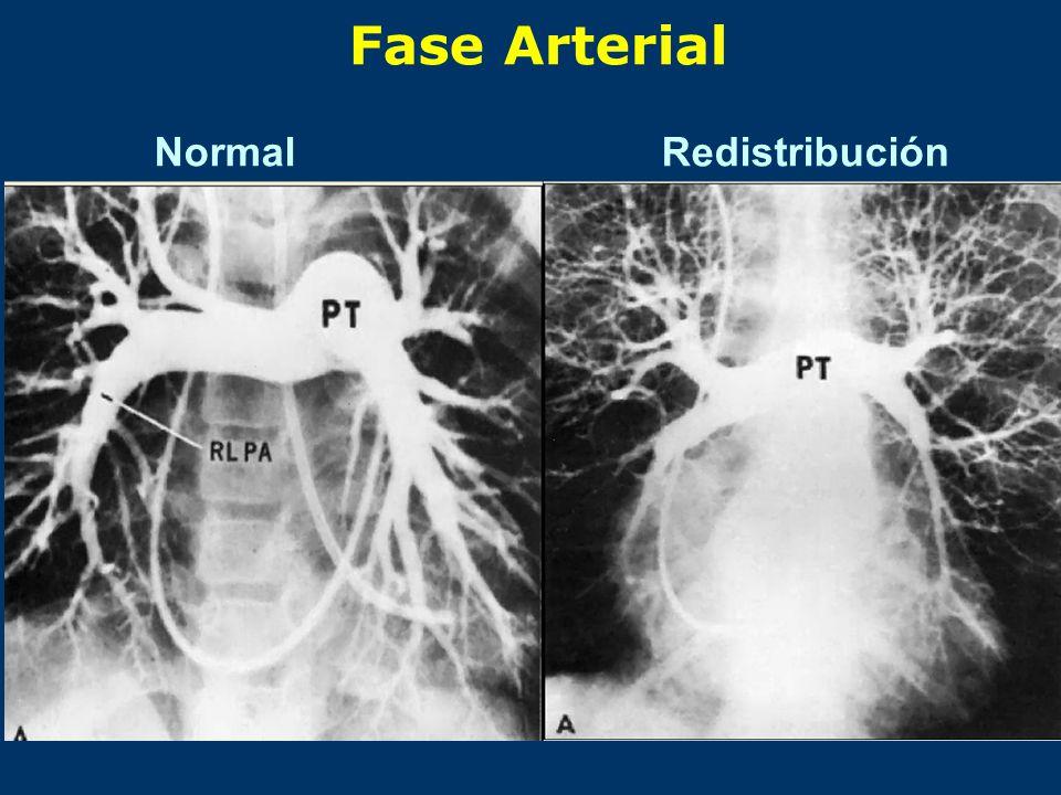 Fase Arterial Normal Redistribución