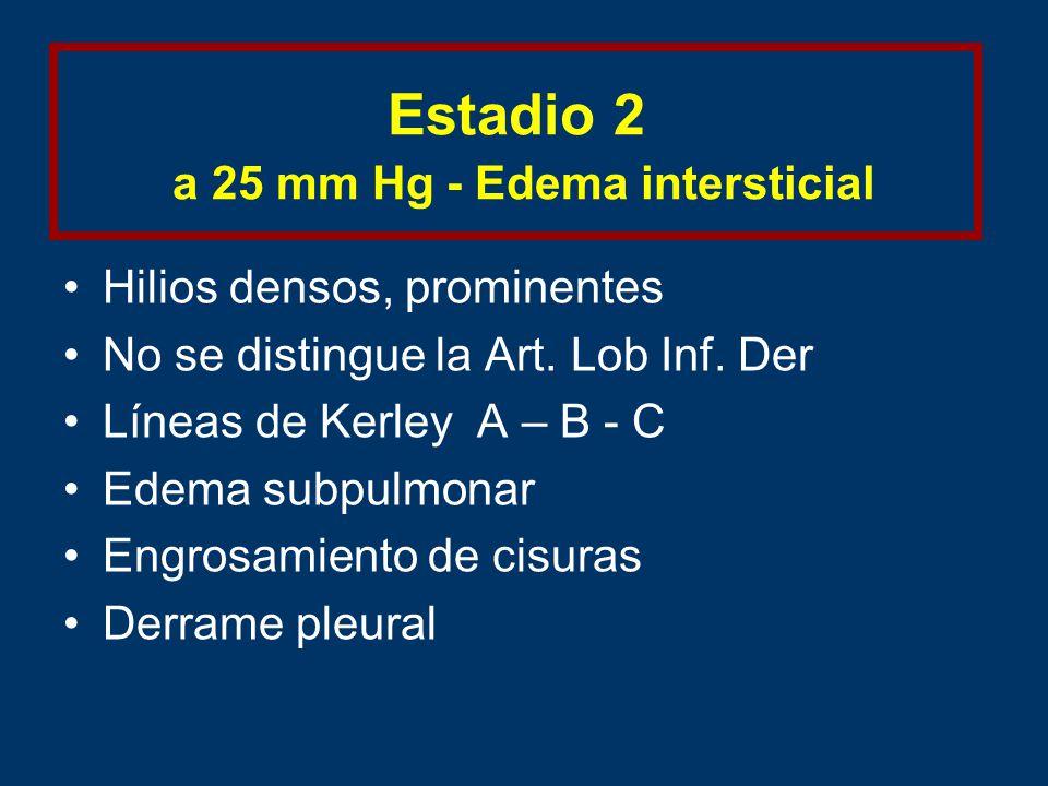 Estadio 2 a 25 mm Hg - Edema intersticial Hilios densos, prominentes No se distingue la Art.