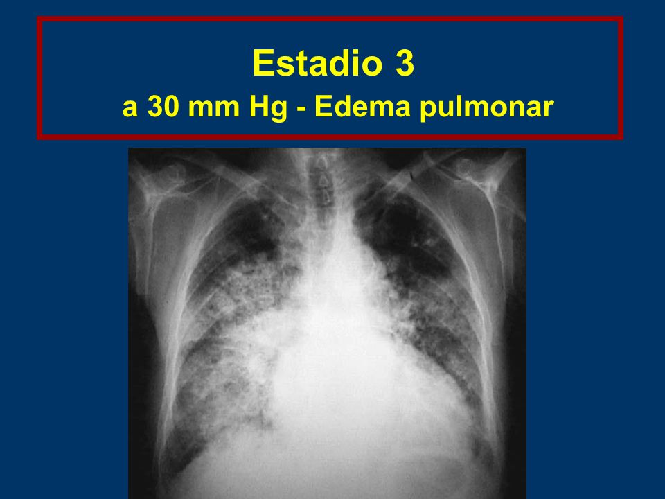 Estadio 3 a 30 mm Hg - Edema pulmonar