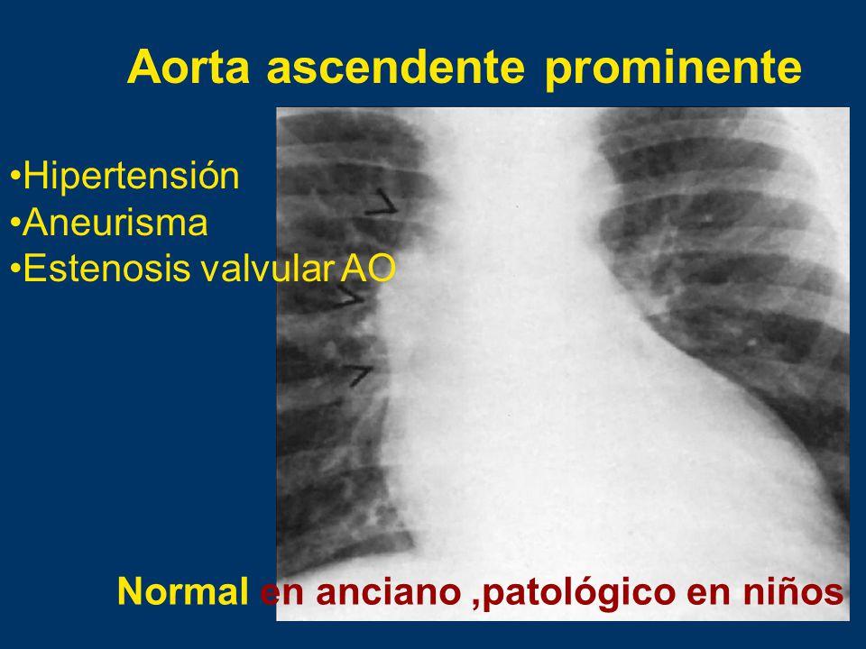 Aorta ascendente prominente Hipertensión Aneurisma Estenosis valvular AO Normal en anciano,patológico en niños