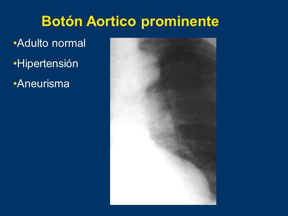 Botón Aortico prominente Adulto normal Hipertensión Aneurisma