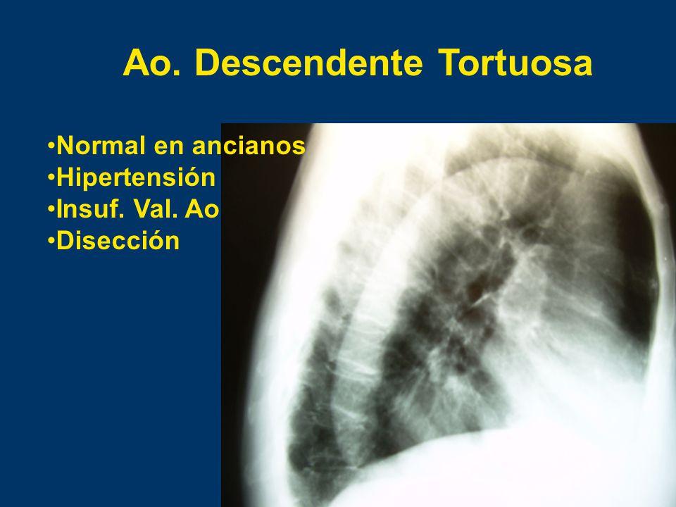 Ao. Descendente Tortuosa Normal en ancianos Hipertensión Insuf. Val. Ao Disección