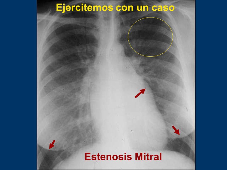 Estenosis Mitral Ejercitemos con un caso