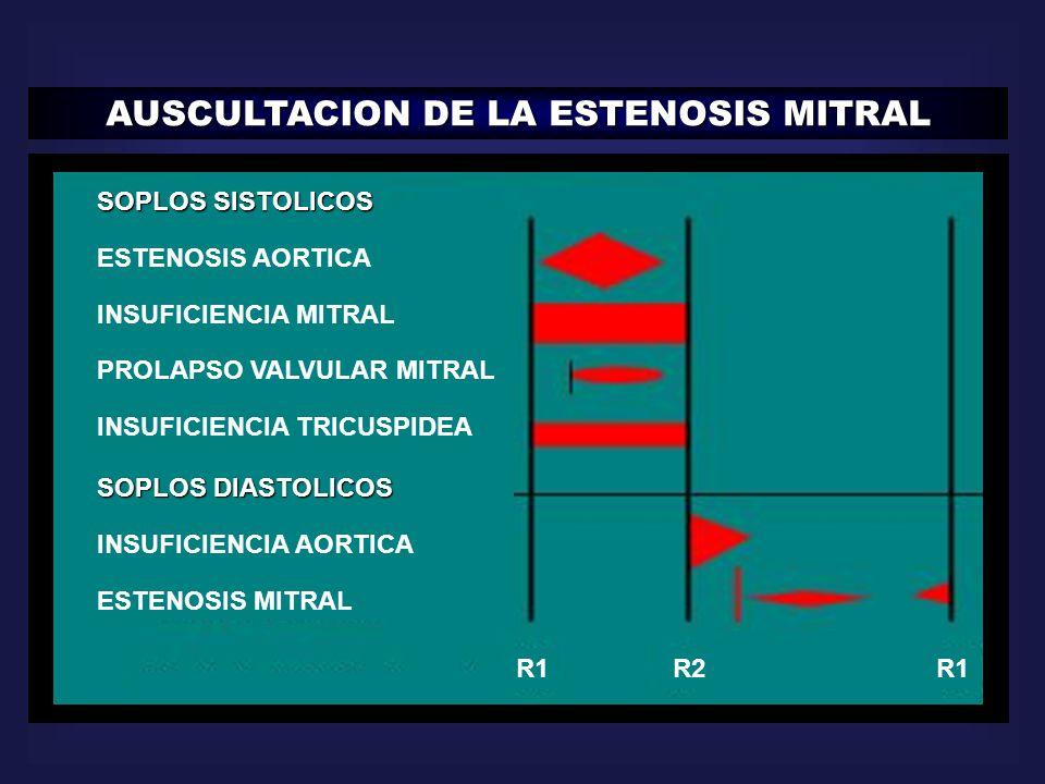 AUSCULTACION DE LA ESTENOSIS MITRAL SOPLOS SISTOLICOS ESTENOSIS AORTICA INSUFICIENCIA MITRAL PROLAPSO VALVULAR MITRAL INSUFICIENCIA TRICUSPIDEA SOPLOS