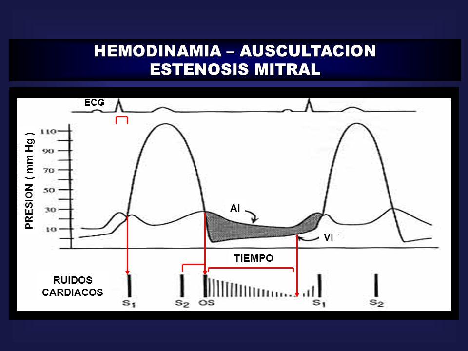 HEMODINAMIA – AUSCULTACION ESTENOSIS MITRAL ECG RUIDOS CARDIACOS TIEMPO PRESION ( mm Hg ) AI VI