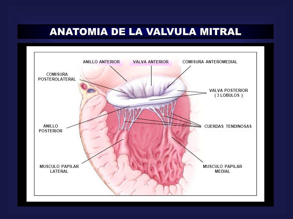 ANATOMIA DE LA VALVULA MITRAL VALVA POSTERIOR ( 3 LOBULOS ) COMISURA ANTEROMEDIALVALVA ANTERIOR ANILLO ANTERIOR COMISURA POSTEROLATERAL CUERDAS TENDIN