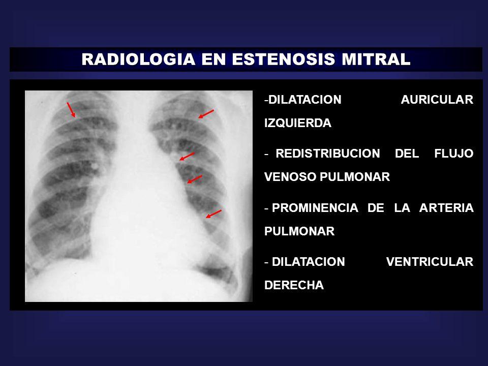 RADIOLOGIA EN ESTENOSIS MITRAL -DILATACION AURICULAR IZQUIERDA - REDISTRIBUCION DEL FLUJO VENOSO PULMONAR - PROMINENCIA DE LA ARTERIA PULMONAR - DILAT