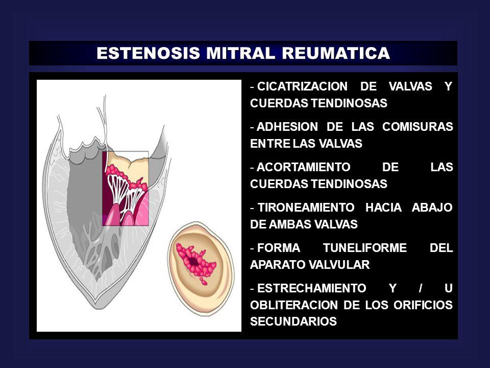 ESTENOSIS MITRAL REUMATICA - CICATRIZACION DE VALVAS Y CUERDAS TENDINOSAS - ADHESION DE LAS COMISURAS ENTRE LAS VALVAS - ACORTAMIENTO DE LAS CUERDAS T