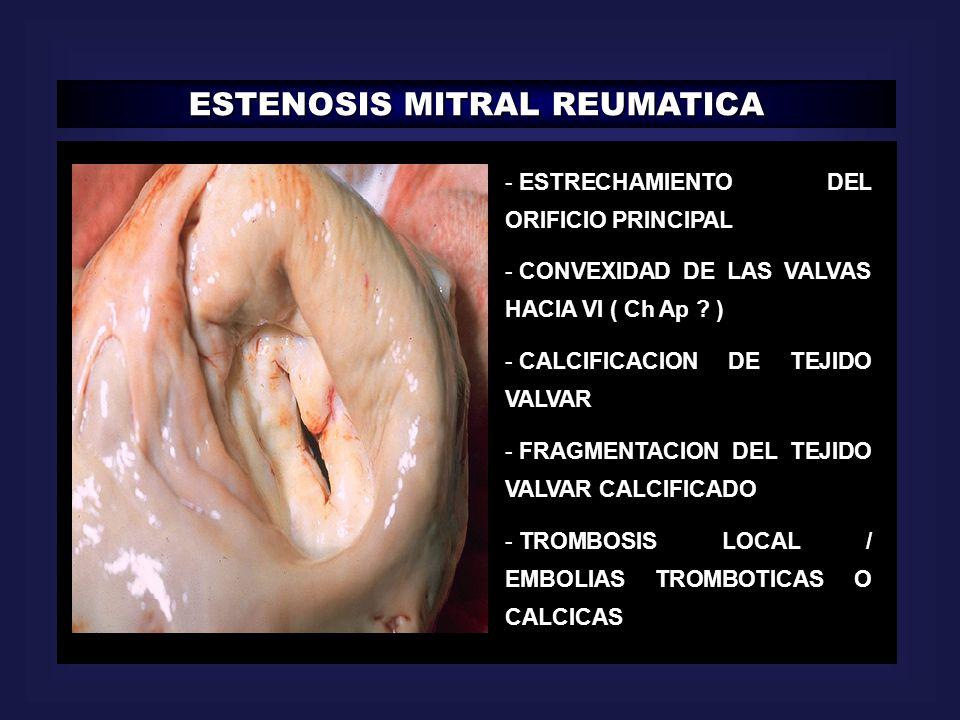 ESTENOSIS MITRAL REUMATICA - ESTRECHAMIENTO DEL ORIFICIO PRINCIPAL - CONVEXIDAD DE LAS VALVAS HACIA VI ( Ch Ap ? ) - CALCIFICACION DE TEJIDO VALVAR -