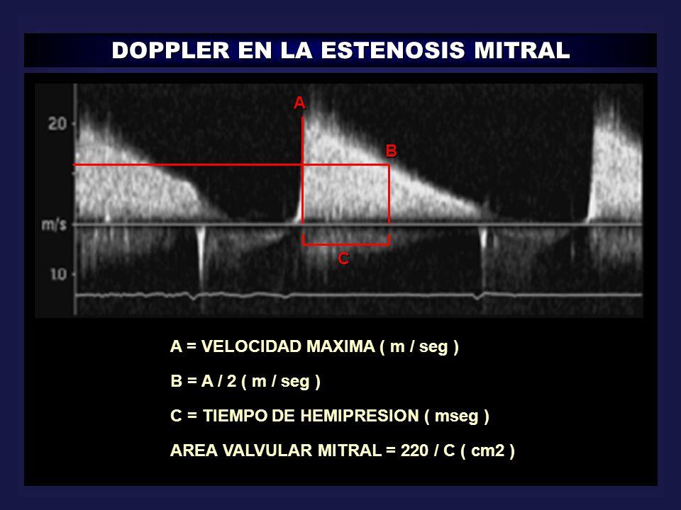 DOPPLER EN LA ESTENOSIS MITRAL A B C A = VELOCIDAD MAXIMA ( m / seg ) B = A / 2 ( m / seg ) C = TIEMPO DE HEMIPRESION ( mseg ) AREA VALVULAR MITRAL =