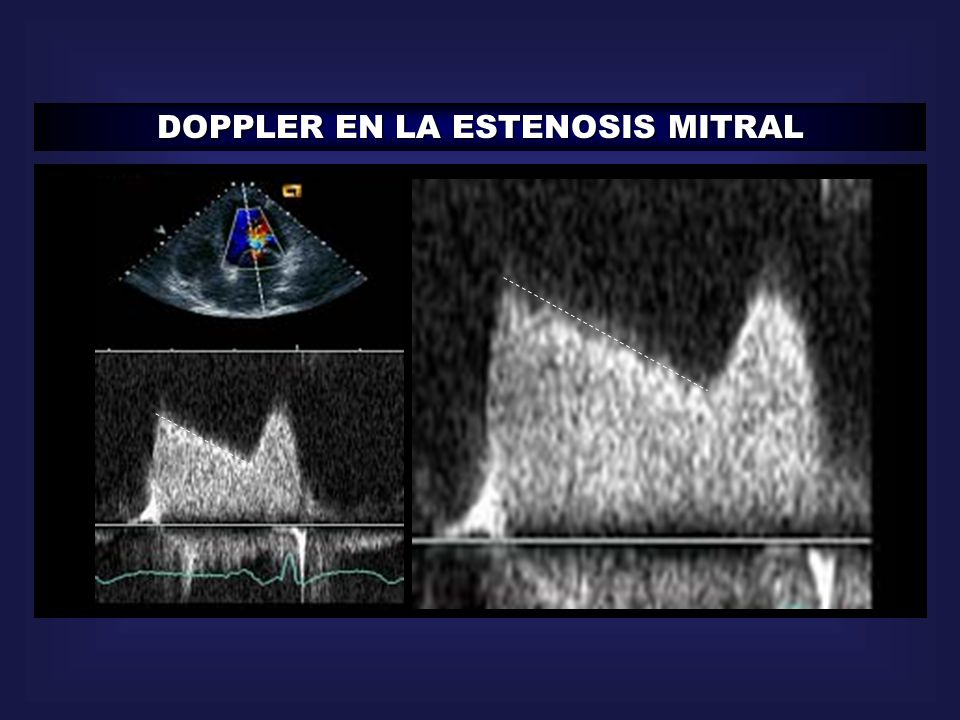 DOPPLER EN LA ESTENOSIS MITRAL