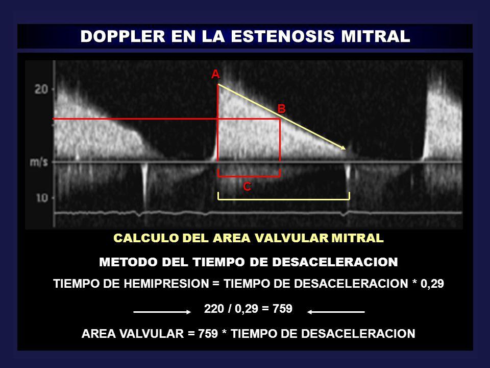 DOPPLER EN LA ESTENOSIS MITRAL A B C CALCULO DEL AREA VALVULAR MITRAL METODO DEL TIEMPO DE DESACELERACION TIEMPO DE HEMIPRESION = TIEMPO DE DESACELERA