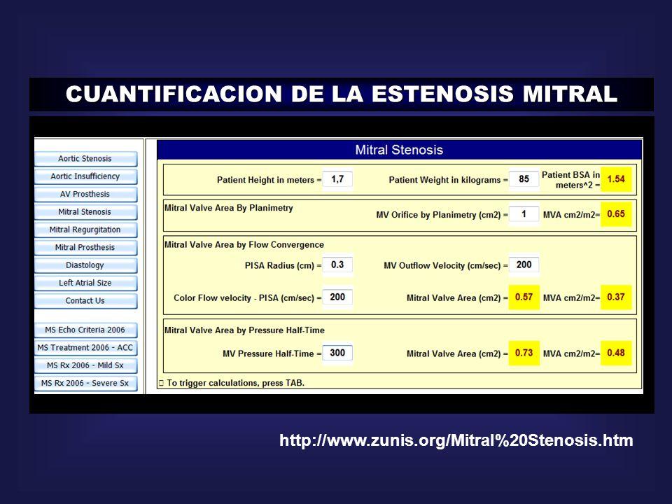 http://www.zunis.org/Mitral%20Stenosis.htm CUANTIFICACION DE LA ESTENOSIS MITRAL