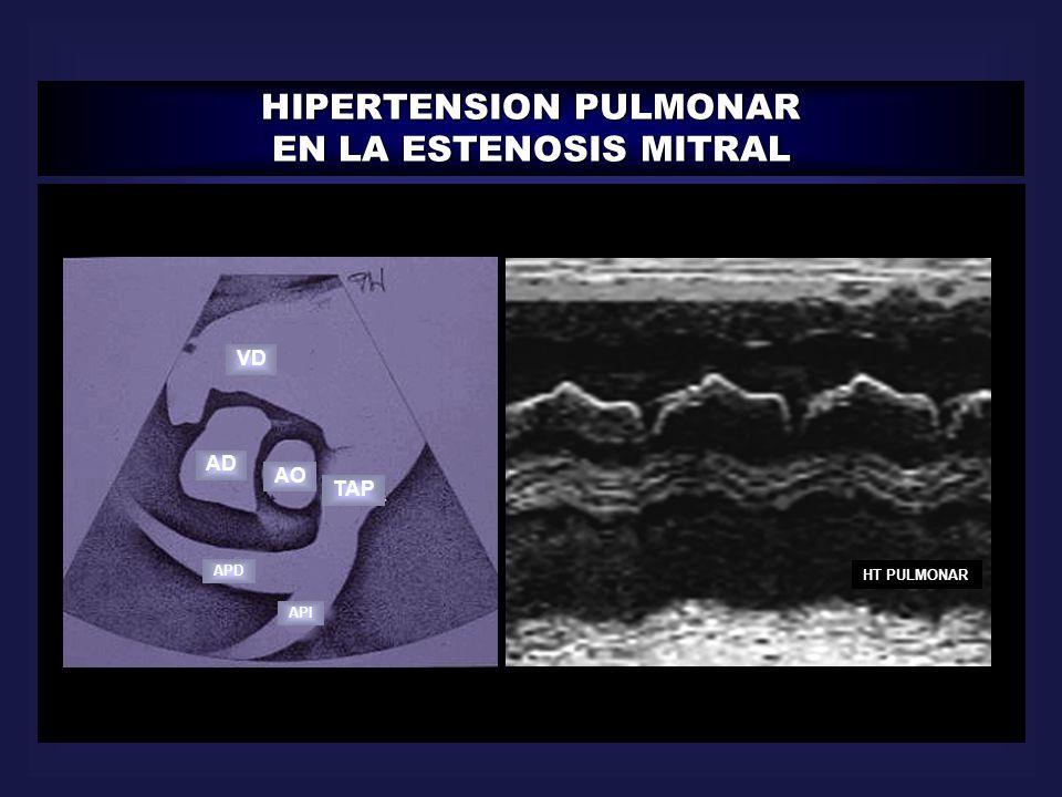 HIPERTENSION PULMONAR EN LA ESTENOSIS MITRAL HT PULMONAR VD AD AO TAP APD API