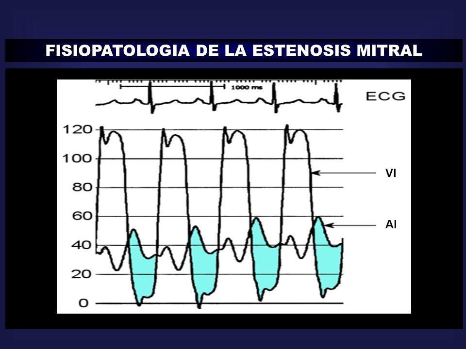 FISIOPATOLOGIA DE LA ESTENOSIS MITRAL AI VI