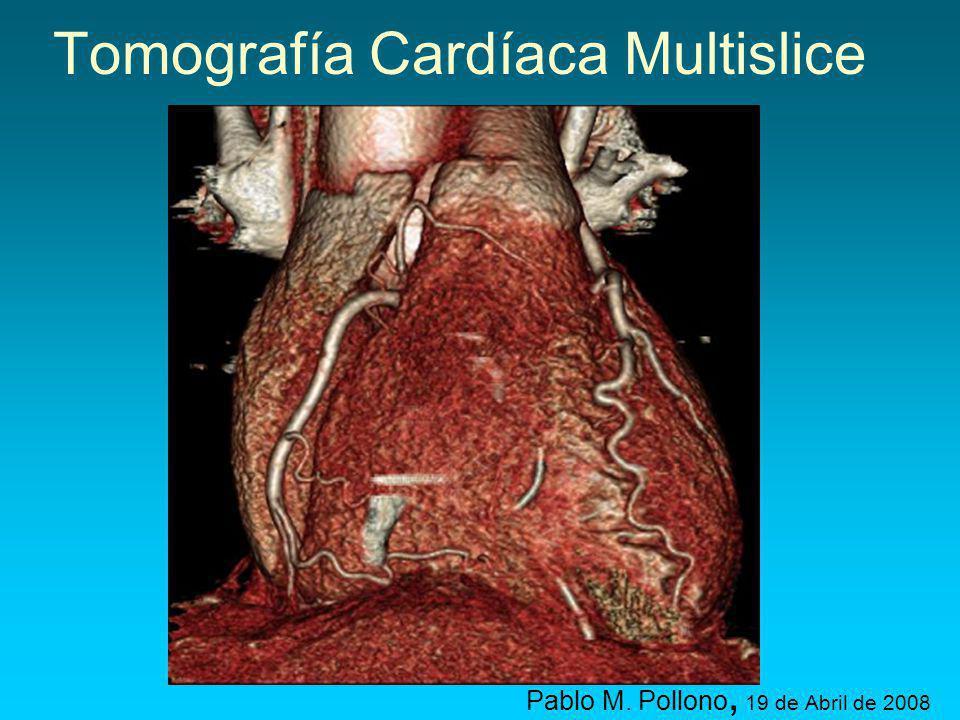 Tomografía Cardíaca Multislice Pablo M. Pollono, 19 de Abril de 2008