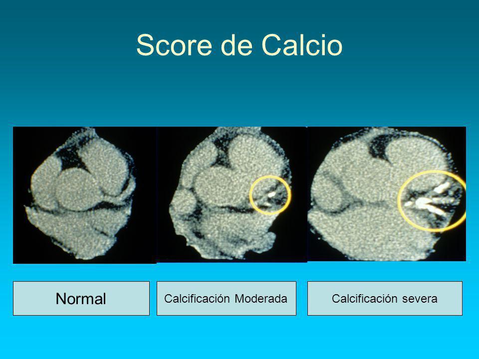 Score de Calcio Normal Calcificación ModeradaCalcificación severa