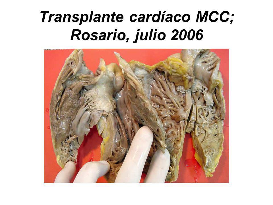 Transplante cardíaco MCC; Rosario, julio 2006