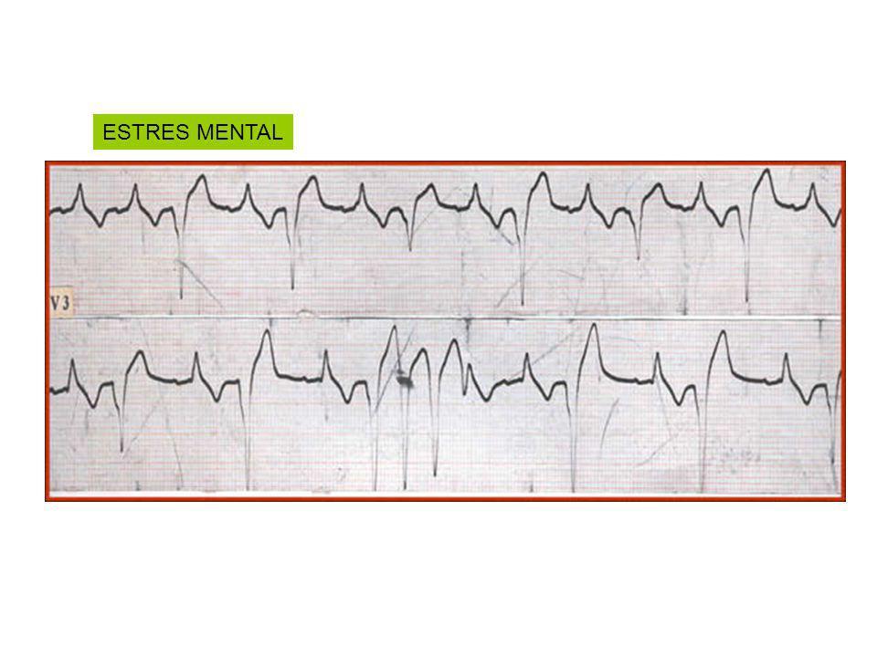 Paciente:Mujer 45años Procedencia: Salavina (Stgo.delEstero) Migración:20 años Diagnostico: Embarazo 2004 MC:Palpitaciones ECG: HBAI – QSTINFEROLATERAL PEG:150KGM – METS - AV