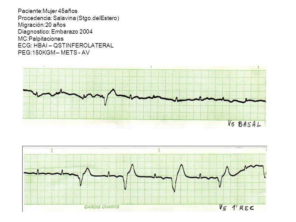 Paciente:Mujer 45años Procedencia: Salavina (Stgo.delEstero) Migración:20 años Diagnostico: Embarazo 2004 MC:Palpitaciones ECG: HBAI – QSTINFEROLATERA