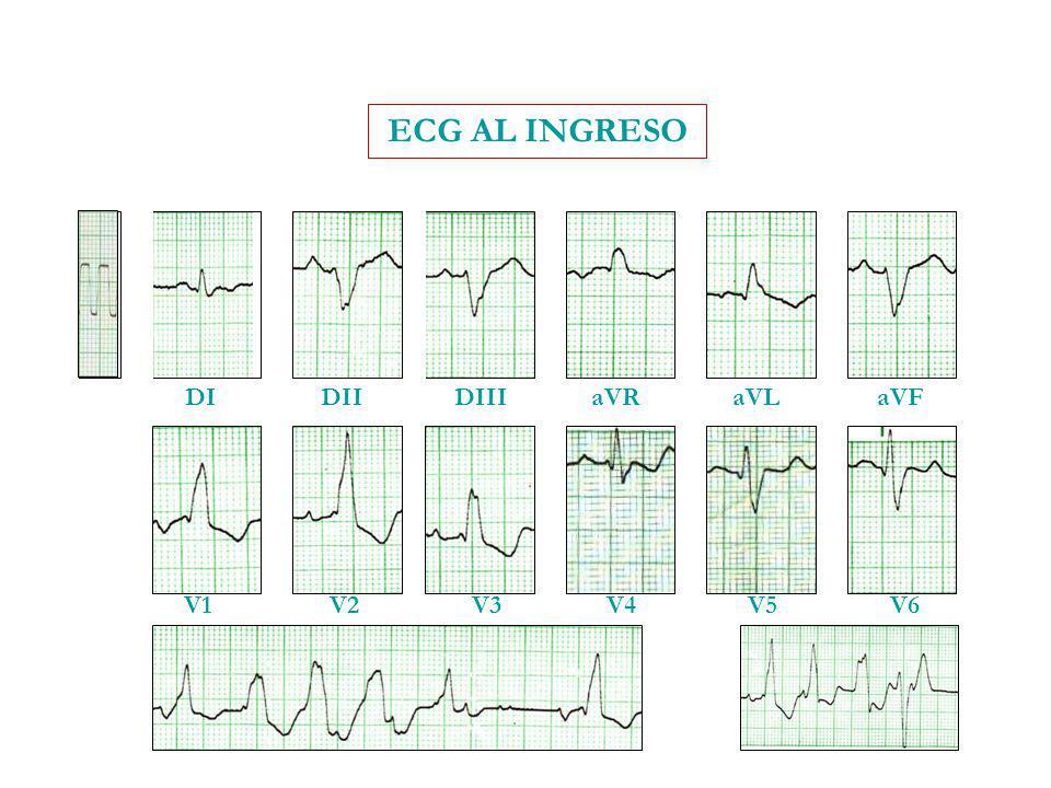 ECG AL INGRESO DI DII DIII aVR aVL aVF V1 V2 V3 V4 V5 V6