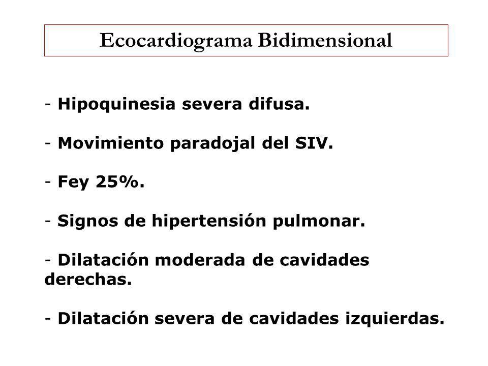 Ecocardiograma Bidimensional - Hipoquinesia severa difusa. - Movimiento paradojal del SIV. - Fey 25%. - Signos de hipertensión pulmonar. - Dilatación