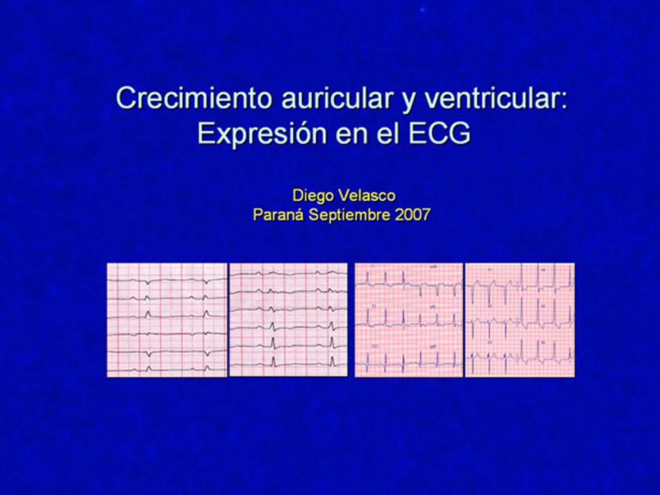 Criterios PropuestosPresencia R V1 > 7 mm35 % S V1 < 2 mm30 % S V6 > 7 mm30 % R V1 + S V6 > 10,5 mm26 % R/S < 1 V5-V620 % Deflexión intrinsecoide 0.04 - 0.07 sg42 % Â QRS entre +110º37 % Alteraciones ST-T30 % Ondas P patológicas9 % Am.