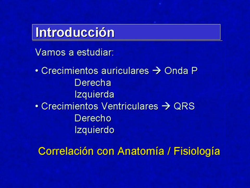Sobrecarga VD 1328 autopsias; 118 con criterios ECG de SVD Sin distinción entre patologías Sin distinción entre patologías Am.