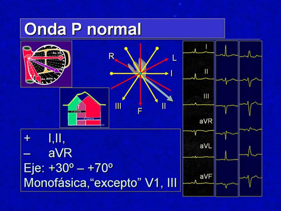Hemibloqueo anterior Diagnóstico ECG: Dl y aVL con complejos qR.