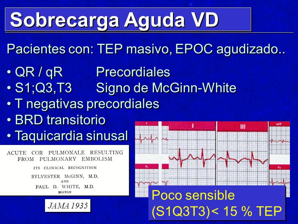 Sobrecarga Aguda VD Pacientes con: TEP masivo, EPOC agudizado.. QR / qR Precordiales S1;Q3,T3Signo de McGinn-White T negativas precordiales BRD transi