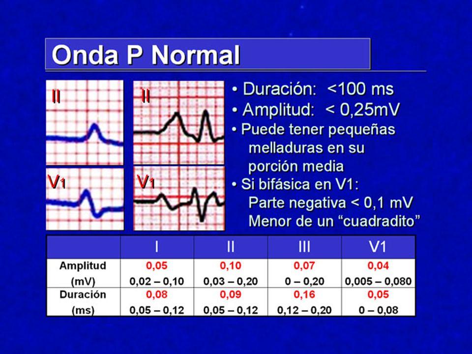 Sobrecarga VD CriterioSensibilidadEspecificidad Eje > 100 º14 %90 % R/S V1 > 125 %90 % R V1 > 7 mm12 %93 % S V5-V6 > 7 mm17 %93 % S1Q3T310 %93 % R V1 + S V6 >10,5 mm18 %94 % QRS < 120 ms Am.