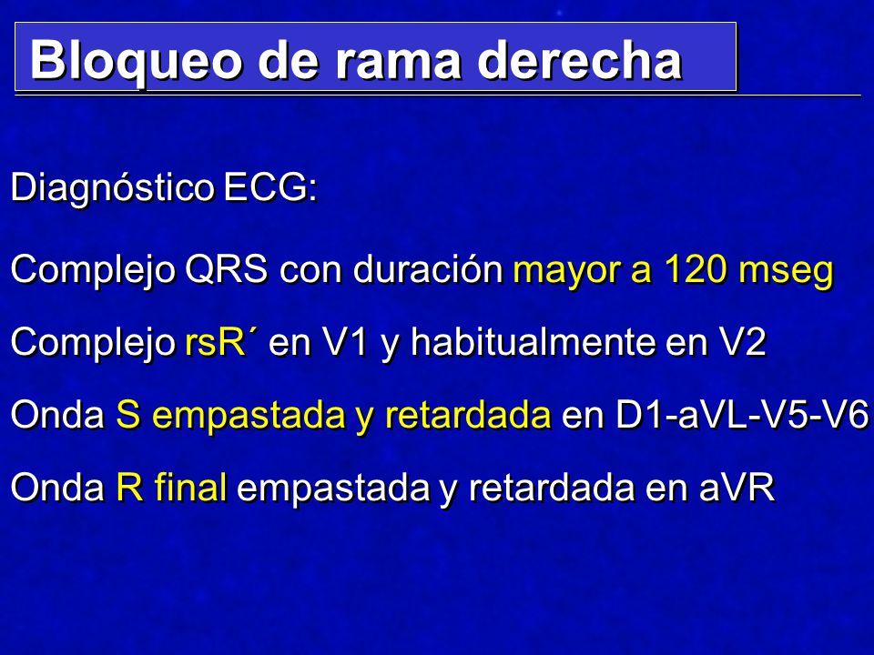 Diagnóstico ECG: Complejo QRS con duración mayor a 120 mseg Complejo rsR´ en V1 y habitualmente en V2 Onda S empastada y retardada en D1-aVL-V5-V6 Ond