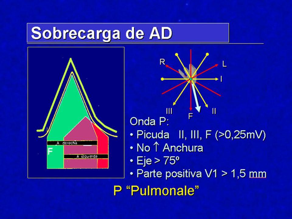 Cor Pulmonale En general Sensibilidad diagnóstica 40 – 50 % Cierta correlación Severidad – ECG En general Sensibilidad diagnóstica 40 – 50 % Cierta correlación Severidad – ECG Desviación derecha del eje S profunda V5-V6(Más frecuente; enfisema) S profunda V5-V6(Más frecuente; enfisema) R alta V1-V2Más en HTTP; TEP… R alta V1-V2Más en HTTP; TEP… Otros:BRD Otros:BRD Alteraciones ST-T Precordiales P Pulmonale Desviación derecha del eje S profunda V5-V6(Más frecuente; enfisema) S profunda V5-V6(Más frecuente; enfisema) R alta V1-V2Más en HTTP; TEP… R alta V1-V2Más en HTTP; TEP… Otros:BRD Otros:BRD Alteraciones ST-T Precordiales P Pulmonale