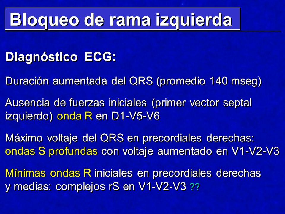 Diagnóstico ECG: Duración aumentada del QRS (promedio 140 mseg) Ausencia de fuerzas iniciales (primer vector septal izquierdo) onda R en D1-V5-V6 Máxi