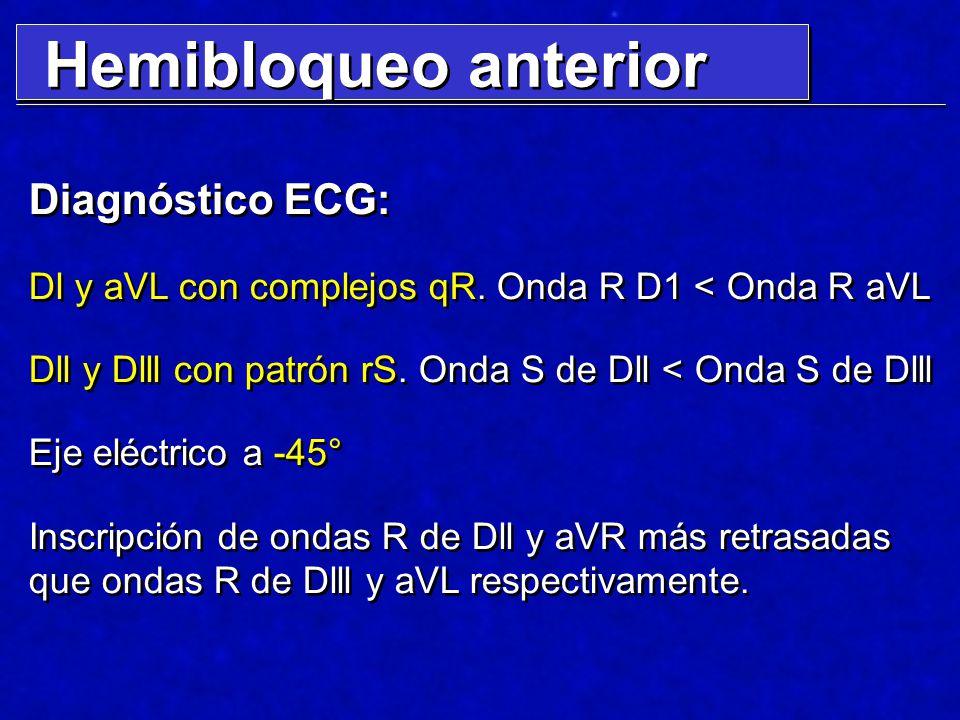 Hemibloqueo anterior Diagnóstico ECG: Dl y aVL con complejos qR. Onda R D1 < Onda R aVL Dll y Dlll con patrón rS. Onda S de Dll < Onda S de Dlll Eje e
