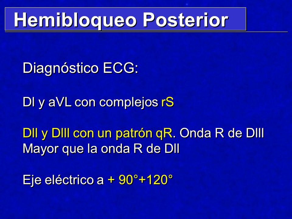 Hemibloqueo Posterior Diagnóstico ECG: Dl y aVL con complejos rS Dll y Dlll con un patrón qR. Onda R de Dlll Mayor que la onda R de Dll Eje eléctrico