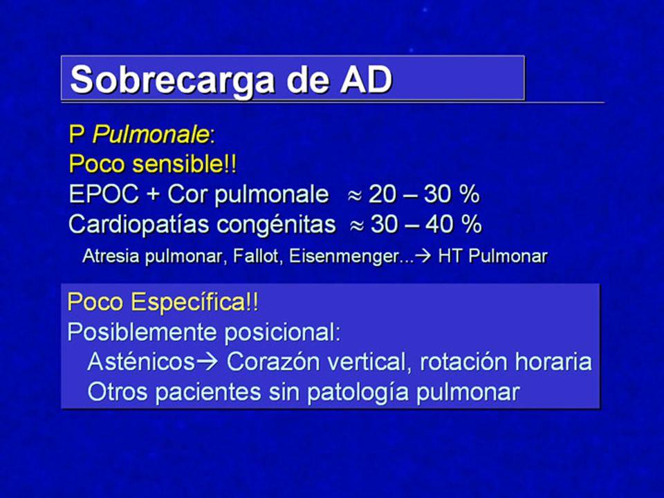 Hemibloqueo Posterior Diagnóstico ECG: Dl y aVL con complejos rS Dll y Dlll con un patrón qR.