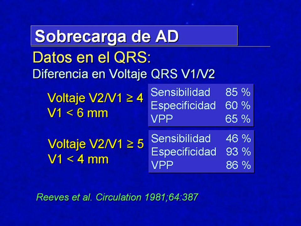 Diagnóstico ECG: Duración aumentada del QRS (promedio 140 mseg) Ausencia de fuerzas iniciales (primer vector septal izquierdo) onda R en D1-V5-V6 Máximo voltaje del QRS en precordiales derechas: ondas S profundas con voltaje aumentado en V1-V2-V3 Mínimas ondas R iniciales en precordiales derechas y medias: complejos rS en V1-V2-V3 ?.