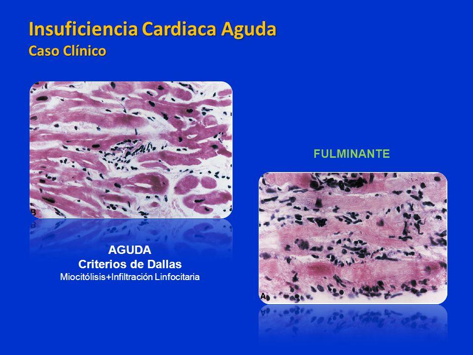 AGUDA Criterios de Dallas Miocitólisis+Infiltración Linfocitaria FULMINANTE