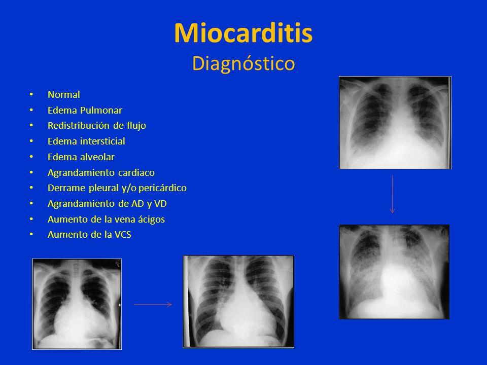 Miocarditis Diagnóstico Normal Edema Pulmonar Redistribución de flujo Edema intersticial Edema alveolar Agrandamiento cardiaco Derrame pleural y/o per