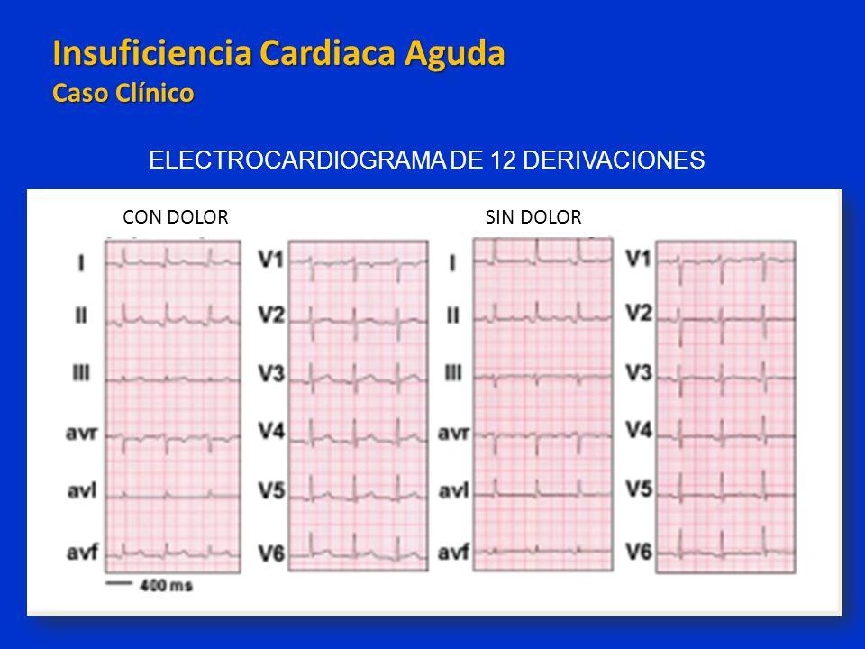 Insuficiencia Cardiaca Aguda Caso Clínico Insuficiencia Cardiaca Aguda Caso Clínico ELECTROCARDIOGRAMA DE 12 DERIVACIONES CON DOLORSIN DOLOR