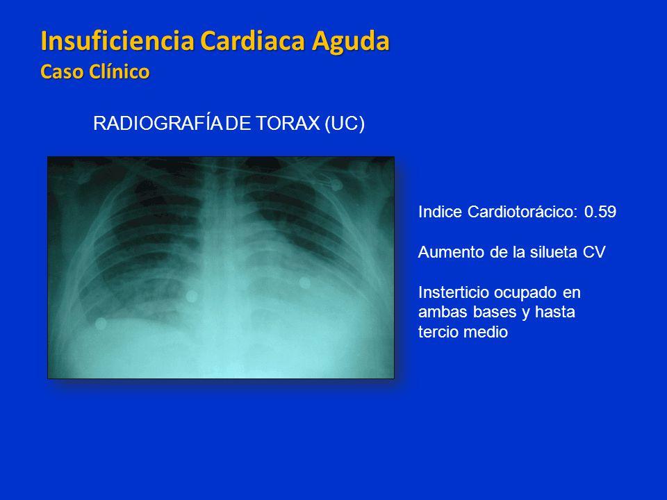 Insuficiencia Cardiaca Aguda Caso Clínico Insuficiencia Cardiaca Aguda Caso Clínico RADIOGRAFÍA DE TORAX (UC) Indice Cardiotorácico: 0.59 Aumento de l