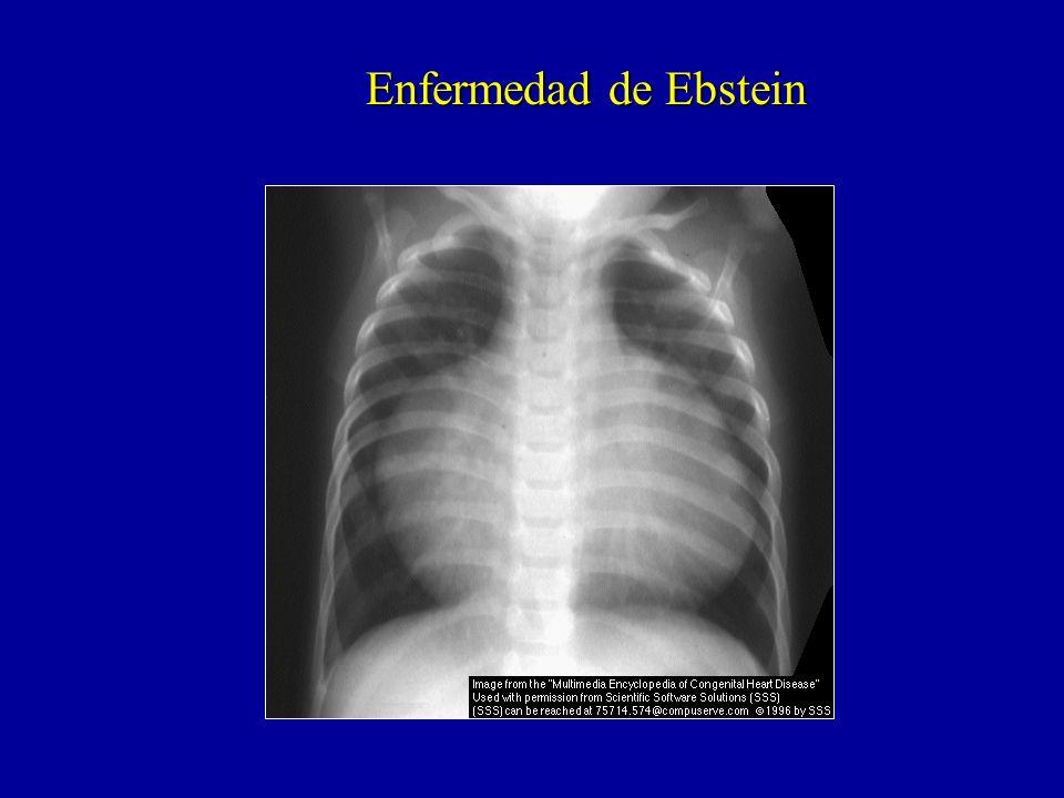 Enfermedad de Ebstein
