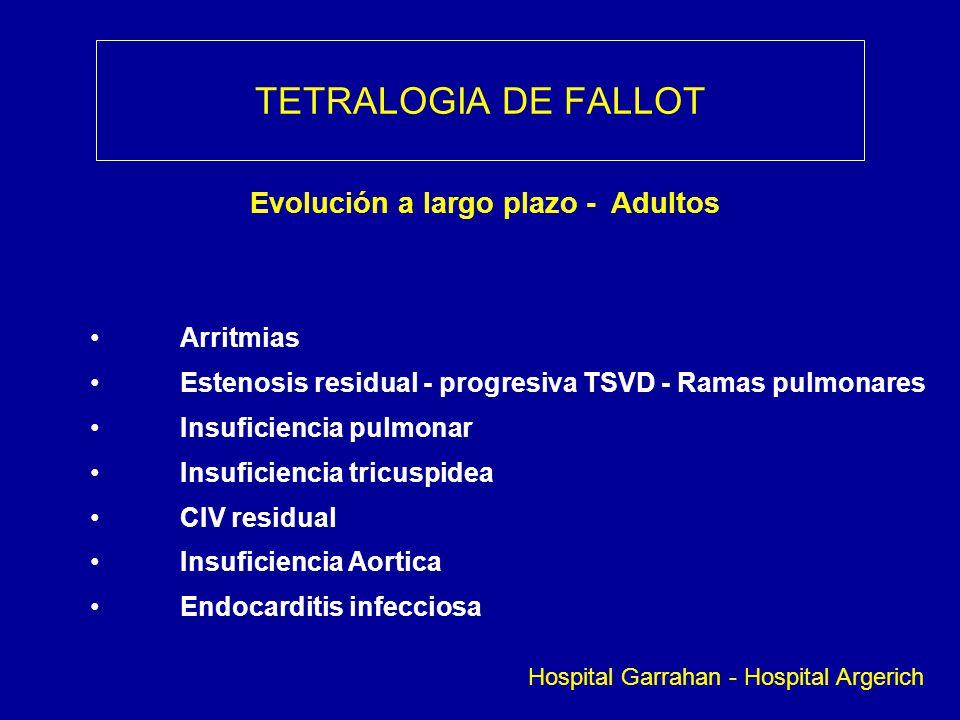 TETRALOGIA DE FALLOT Evolución a largo plazo - Adultos Arritmias Estenosis residual - progresiva TSVD - Ramas pulmonares Insuficiencia pulmonar Insufi