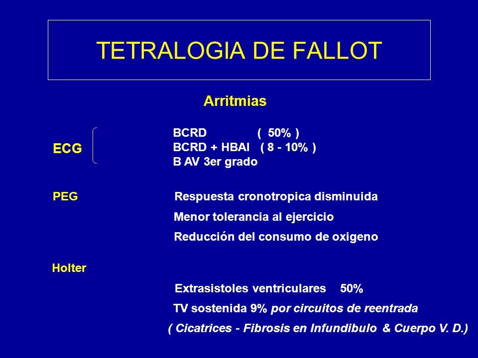 TETRALOGIA DE FALLOT Arritmias ECG PEG Respuesta cronotropica disminuida Menor tolerancia al ejercicio Reducción del consumo de oxigeno BCRD ( 50% ) B